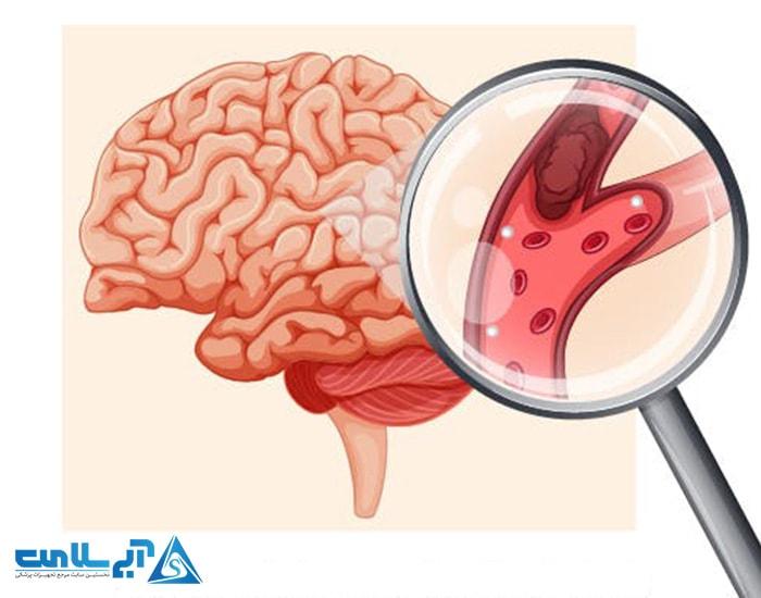 کاهش خطر ابتلا به سکته مغزی