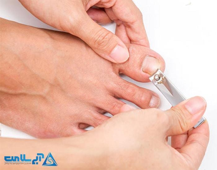 توصیه های مناسب جهت مراقبت از پا در برابر دیابت